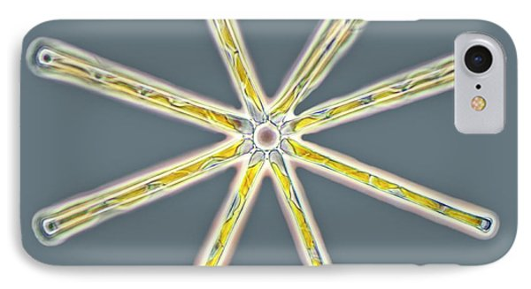 Asterionella Diatoms IPhone Case by Gerd Guenther