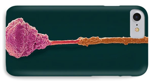 Abnormal Human Sperm Cell IPhone Case by Steve Gschmeissner