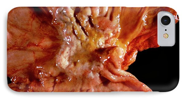 Stomach Cancer IPhone Case by Cnri
