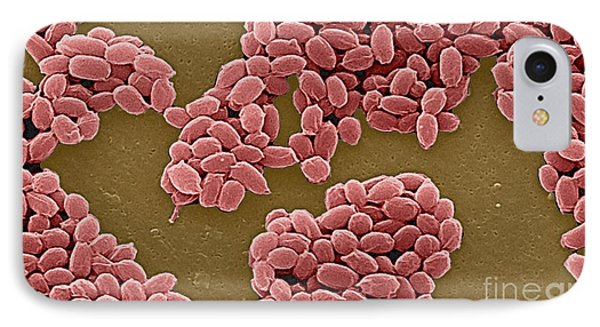 Anthrax Bacteria Sem Phone Case by Science Source