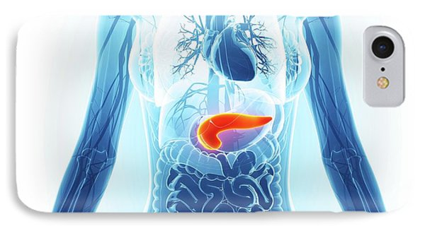 Human Pancreas IPhone Case by Pixologicstudio