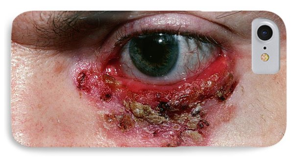 Basal Cell Carcinoma IPhone Case by Microscape