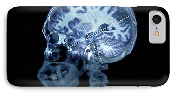 Brain In Alzheimer's Disease IPhone Case by Zephyr