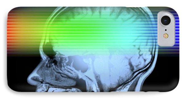 Brain Mri Scan IPhone Case by Alfred Pasieka