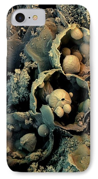 Broccoli IPhone Case by Stefan Diller