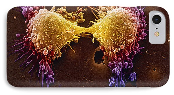 Cancer Cell Division IPhone Case by SPL and Photo Researchers
