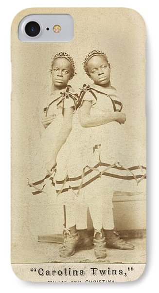 Conjoined Twins IPhone Case by Library Of Congress