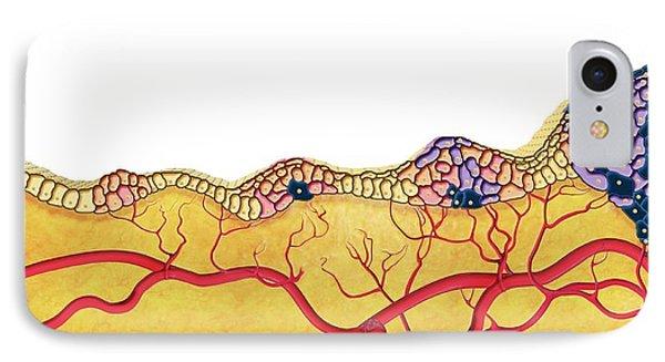 Development Of Cancer IPhone Case by Claus Lunau