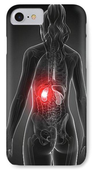 Female Kidney Failure IPhone Case by Sebastian Kaulitzki