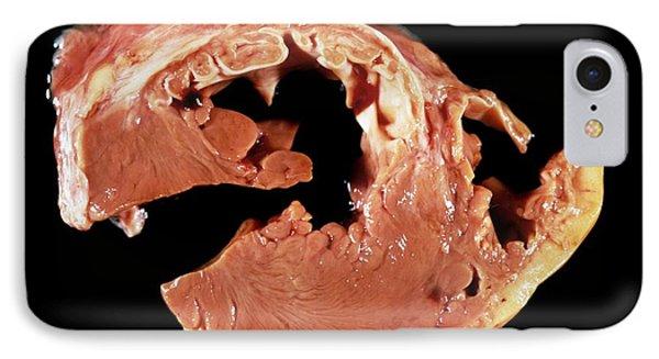 Heart Myxoedema In Hyperthyroidism IPhone Case by Pr. R. Abelanet - Cnri