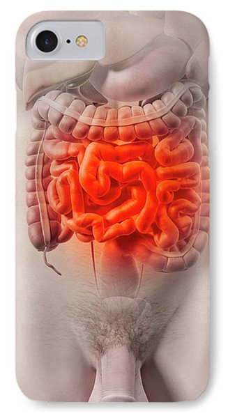 Human Intestine IPhone Case by Sciepro