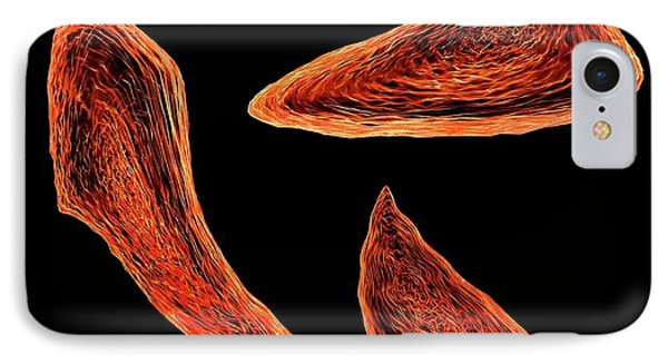 Sickle Cell Anaemia IPhone Case by Mehau Kulyk