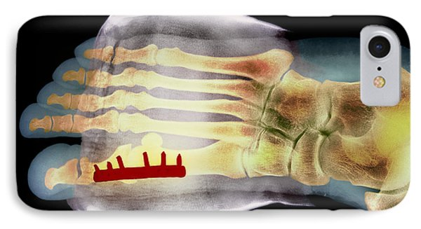 Big Toe After Bunion Surgery, X-ray Phone Case by