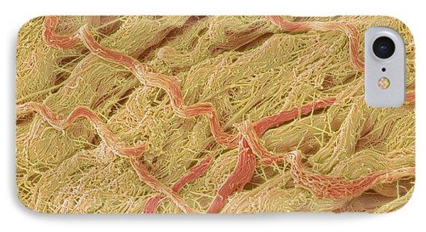 Dense Connective Tissue, Sem Phone Case by Steve Gschmeissner