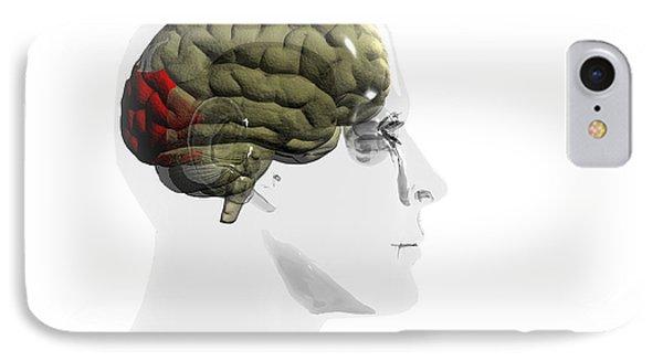 Human Brain, Occipital Lobe Phone Case by Christian Darkin