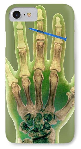 Nail In Fingers, X-ray IPhone Case by Kaj R. Svensson