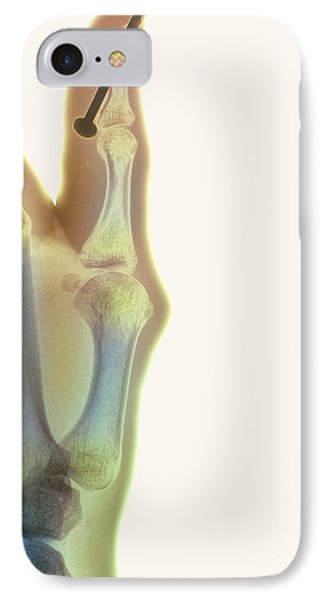 Nail In Thumb X-ray IPhone Case by