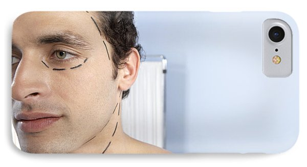 Cosmetic Surgery Phone Case by Adam Gault
