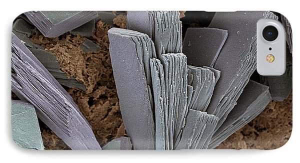 Blood Clot Crystals, Sem Phone Case by Steve Gschmeissner
