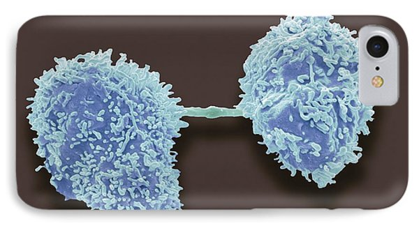 Dividing Cancer Cells, Sem Phone Case by Steve Gschmeissner