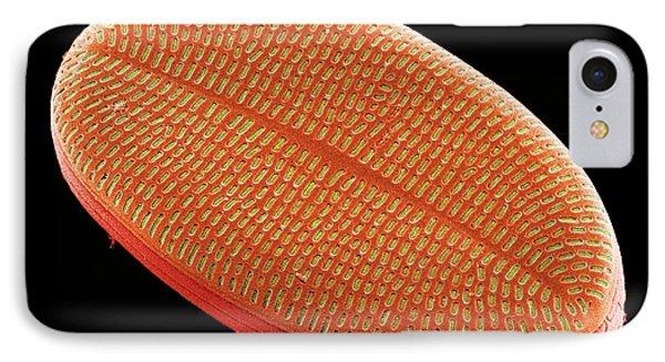 Diatom, Sem IPhone Case by Steve Gschmeissner