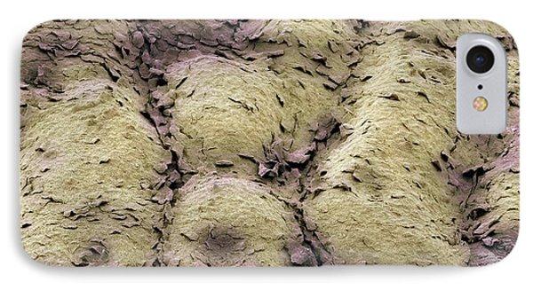 Skin Surface, Sem Phone Case by Steve Gschmeissner