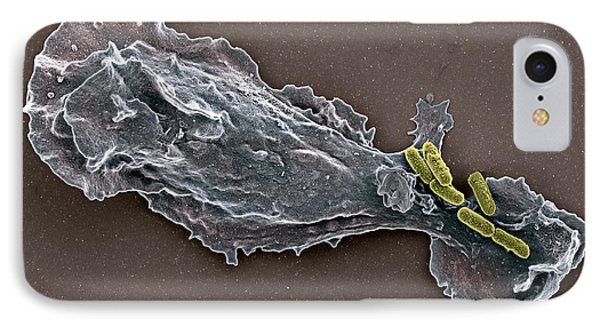 Bacteria And Neutrophil Cell, Sem Phone Case by