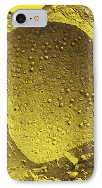 Col. Freeze-fracture Tem Of Cell Nucleus Membrane Phone Case by Dr Kari Lounatmaa