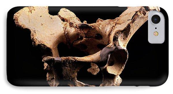 Fossilised Pelvis, Sima De Los Huesos Phone Case by Javier Truebamsf