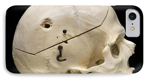 Gunshot Trauma To Skull, 1950s Phone Case by Science Source