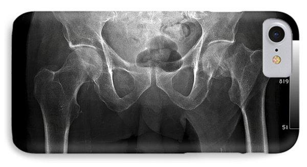 Hip Fracture, Digital X-ray Phone Case by Du Cane Medical Imaging Ltd