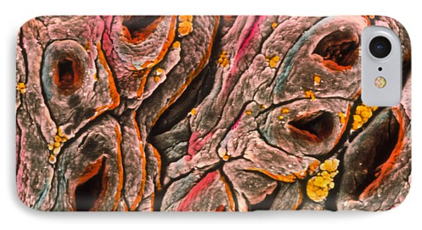 Intestine Showing Coeliac Disease Phone Case by Professors P.m. Motta & F.m. Magliocca