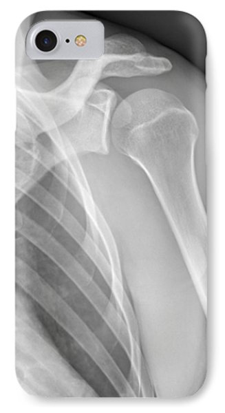 Normal Shoulder, X-ray Phone Case by Zephyr