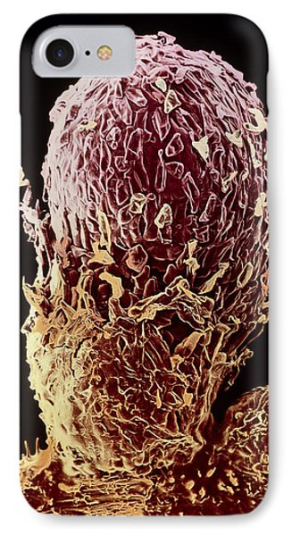 Root Nodule Of Pea Plant Phone Case by Dr Jeremy Burgess