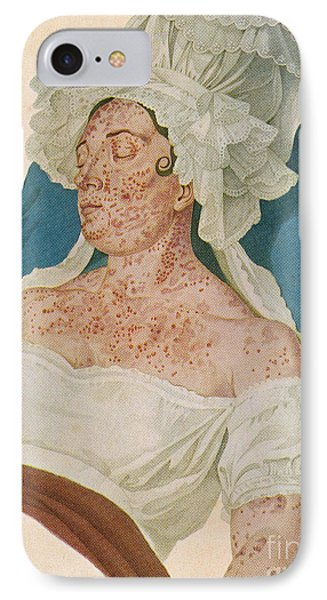 Scarlet Fever Phone Case by Science Source