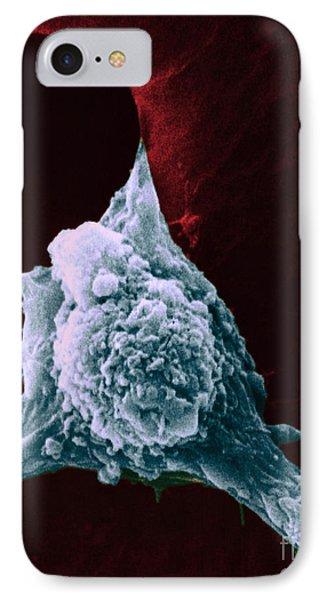 Sem Of Metastasis Phone Case by Science Source