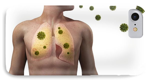 Viral Lung Infection, Conceptual Artwork Phone Case by Sciepro