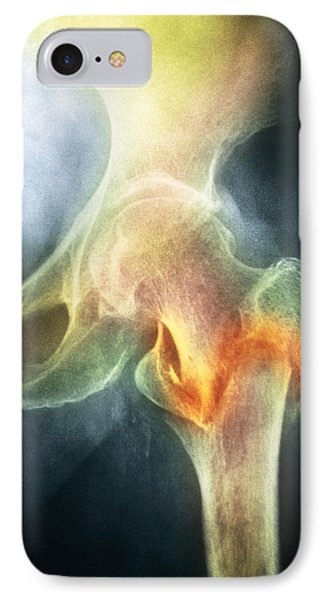 Coloured X-ray Of Femur Fracture In Osteoporosis Phone Case by Medical Photo Nhs Lothian
