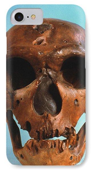 Neanderthal Skull Phone Case by Granger