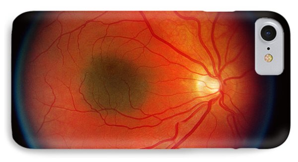 Nevus In The Retina Phone Case by Science Source