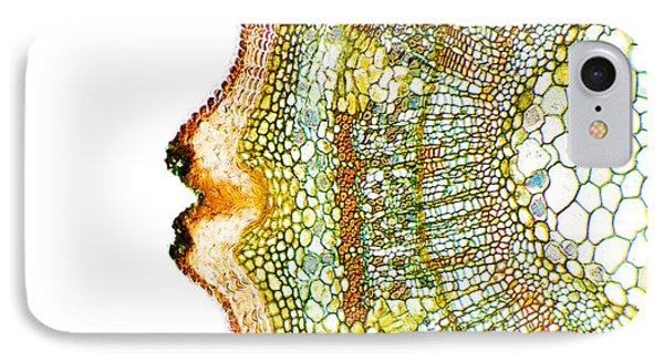 Plant Breathing Pore, Light Micrograph Phone Case by Dr Keith Wheeler