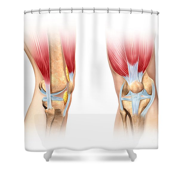 Human Knee Cutaway Illustration Shower Curtain by Leonello Calvetti