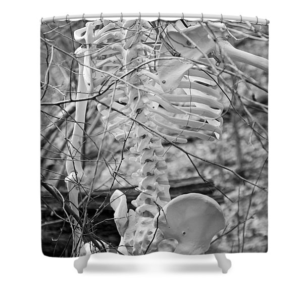 This is Your Spinal Notice Shower Curtain by Betsy C  Knapp