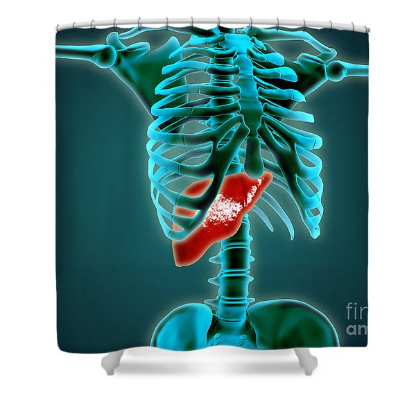 X-ray View Of Human Skeleton With Liver Shower Curtain by Stocktrek Images