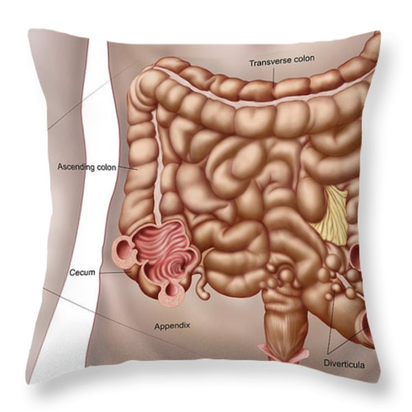 Diverticulitis In The Descending Colon Throw Pillow by Stocktrek Images