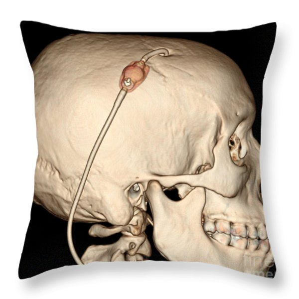 3d Ct Reconstruction Of Intracranial Throw Pillow by Living Art Enterprises, LLC