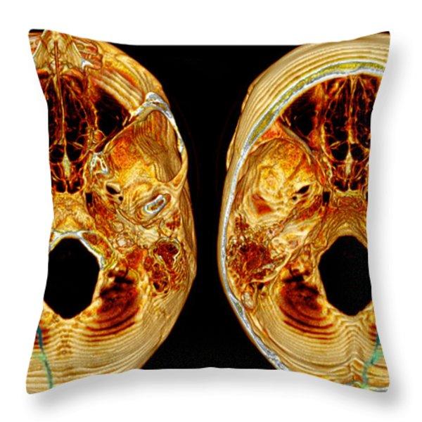 3d Ct Reconstruction Of Skull Fracture Throw Pillow by Scott Camazine