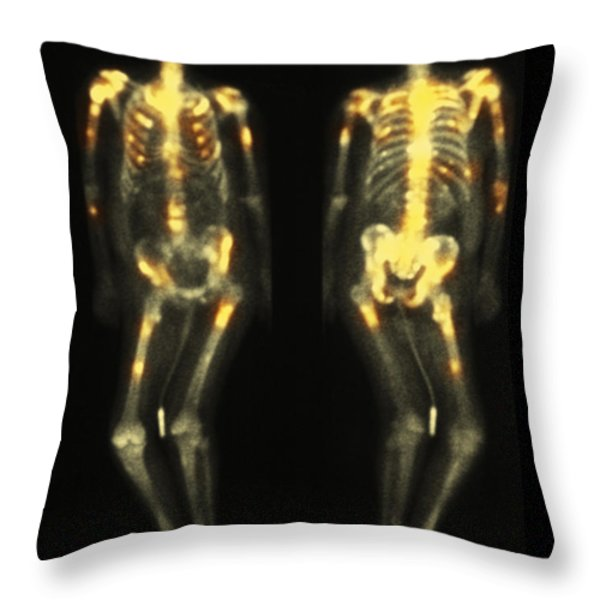 Bone Scan Showing Multiple Metastases Throw Pillow by Scott Camazine