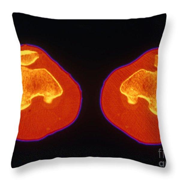 Knees Ct Scan Throw Pillow by Scott Camazine