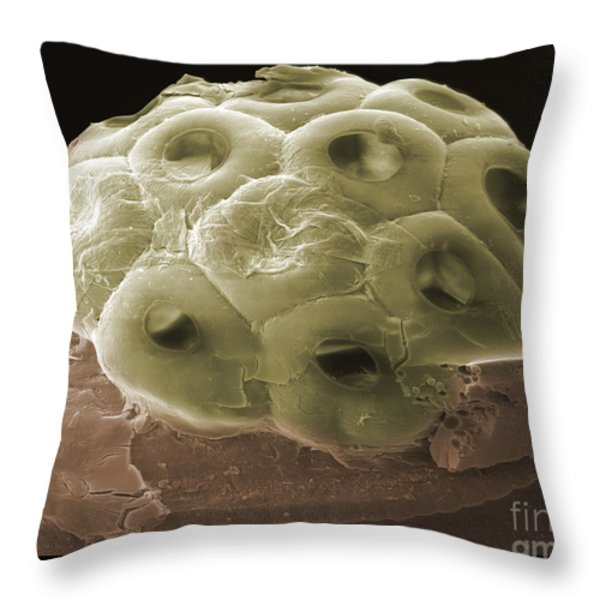 Sem Of A Head Lice Eggs Throw Pillow by Ted Kinsman